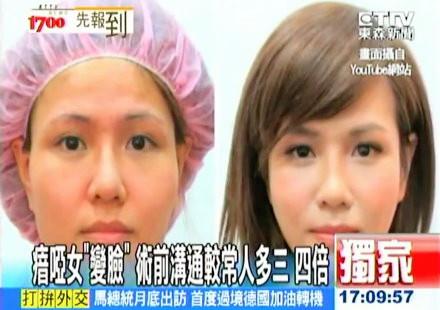 削骨隆乳聽障美女徹底變臉