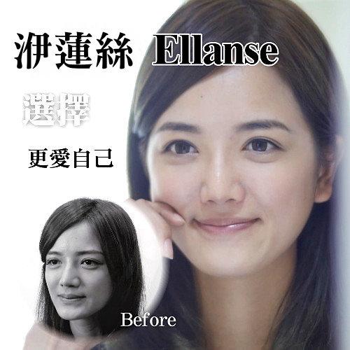 洢蓮絲Ellanse注射蘋果肌 異國風女孩筱米貴氣感提升