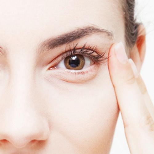 割除眼袋手術前後照片比對