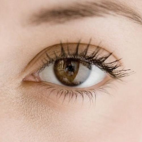 開眼頭手術前後照片比對