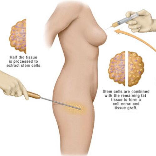 自體脂肪移植手術效果如何?完美體態概念分析