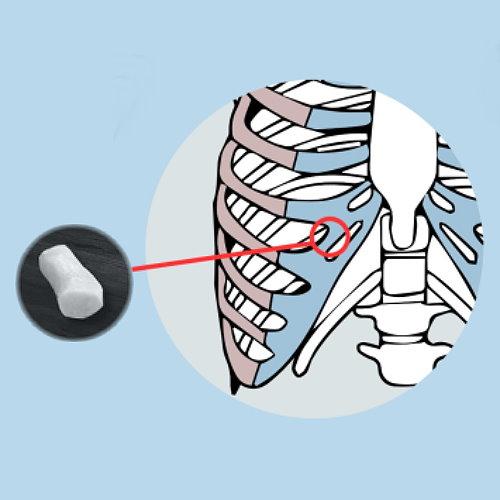 異體肋軟骨隆鼻(耳軟骨、肋軟骨、鼻中膈軟骨)