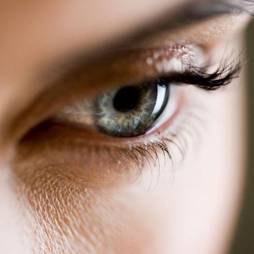 縫雙眼皮手術