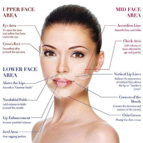 墊法令紋貴族手術效果如何?臉部輪廓概念分析