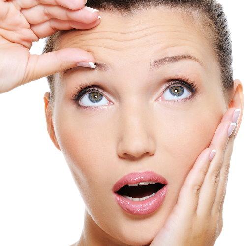 肉毒桿菌注射 - 臉部除皺案例