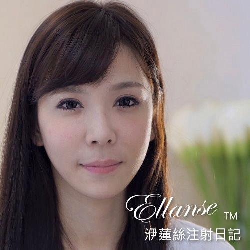 輕熟女SAMMI的依戀詩Ellanse洢蓮絲微整形日記分享