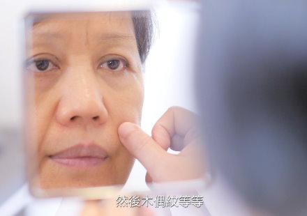 法令紋皺眉紋問題解方式為何?