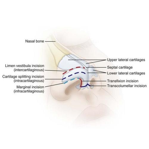 隆鼻手術傷口疤痕及恢復期腫脹過程