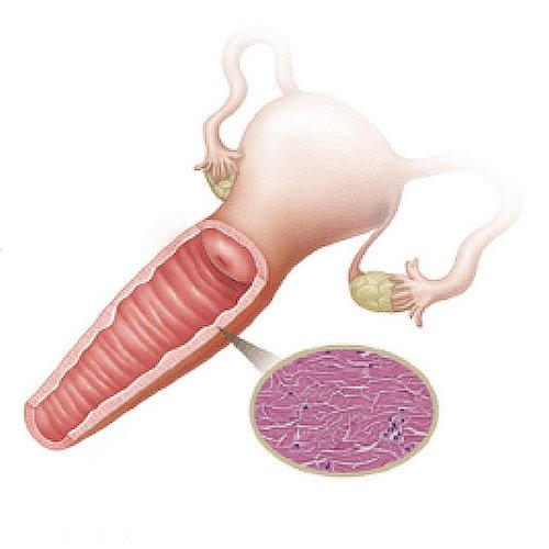 陰道緊實整形手術介紹,陰道鬆弛手術能改善?韓式線性環繞陰道緊實手術介紹 女婦產科專科醫師執刀