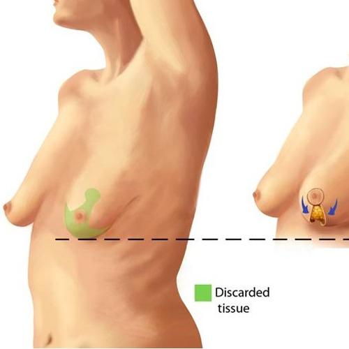 乳房下垂提乳手術介紹