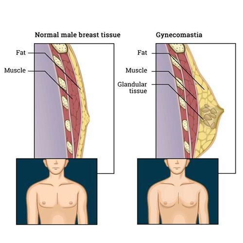 男性女乳症手術分為哪幾種?該如何選擇?男性女乳症手術詳細介紹
