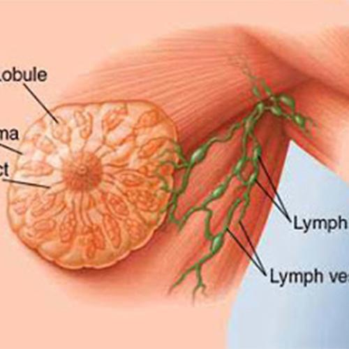 男性女乳症 乳房抽脂手術