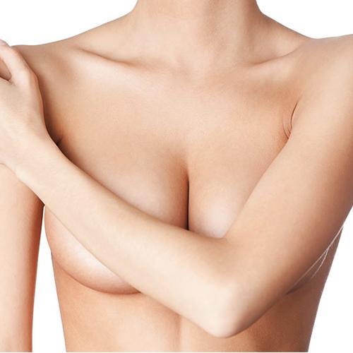 乳暈旁切口縮乳
