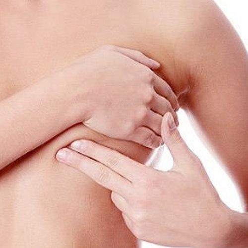 消除副乳抽脂手術手術個案分析 Vaser2.2二代威塑水刀超音波抽脂