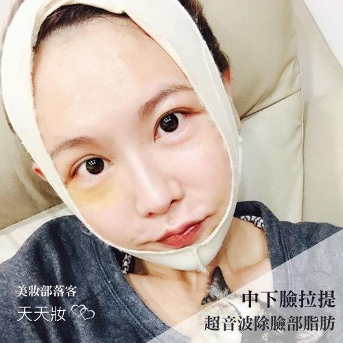 部落客天天妝臉部鬆弛解決方案,下臉中臉拉提拉皮合併超音波抽脂除臉部脂肪手術