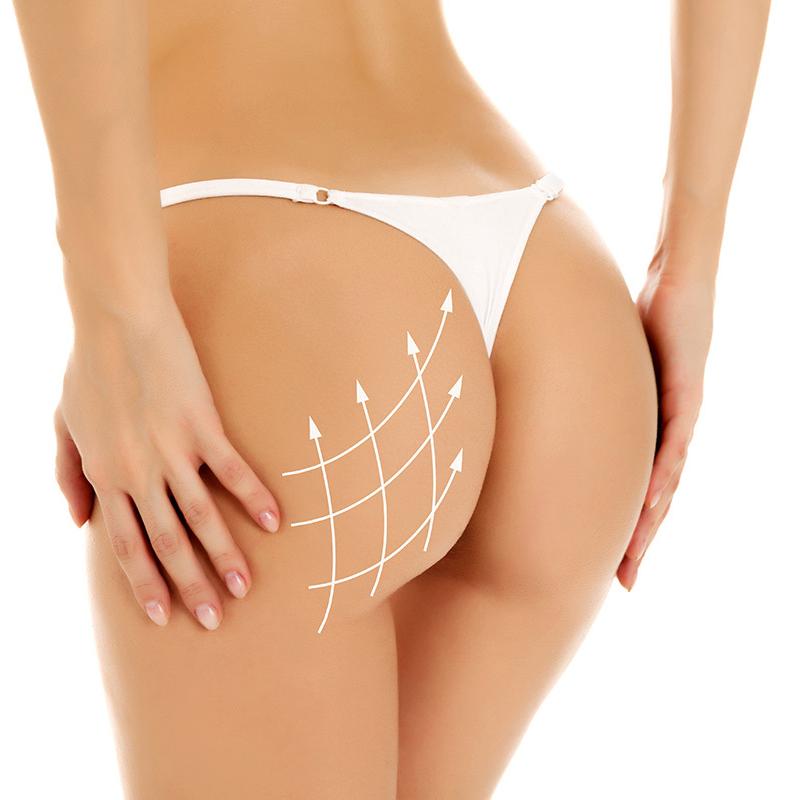 豐臀提臀手術效果如何?美臀概念分析
