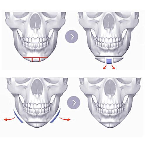下巴削骨手術/下巴截骨V-Line削骨手術/下巴縮短手術