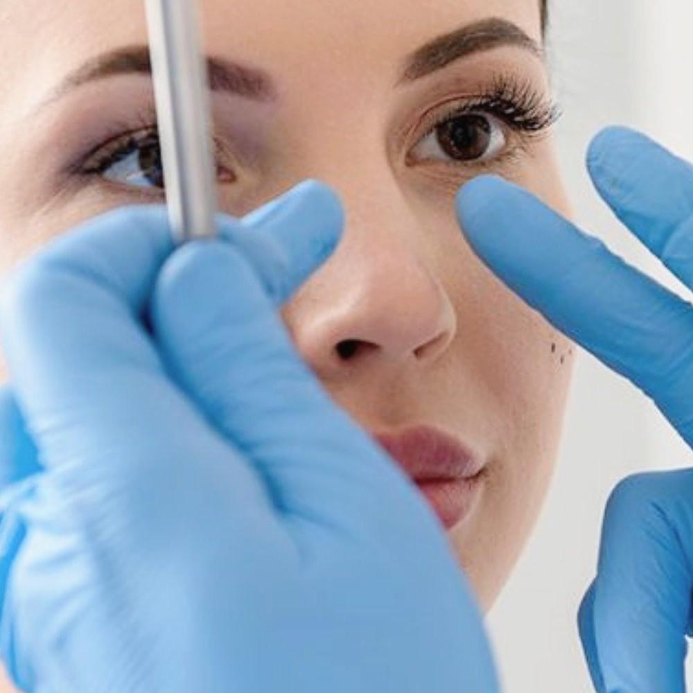 二次隆鼻鼻整形重建手術,隆鼻失敗重做注意事項