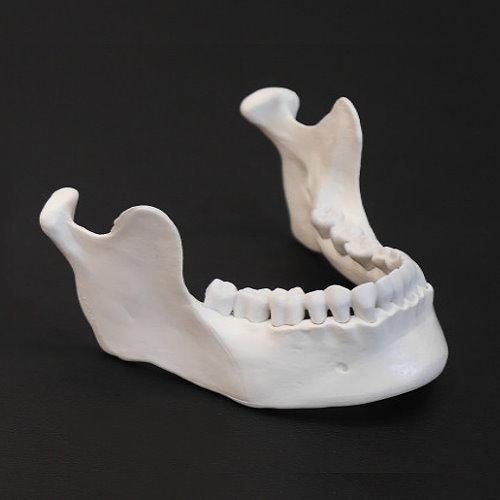 3D列印墊下巴整形手術 - 3D列印墊下巴手術