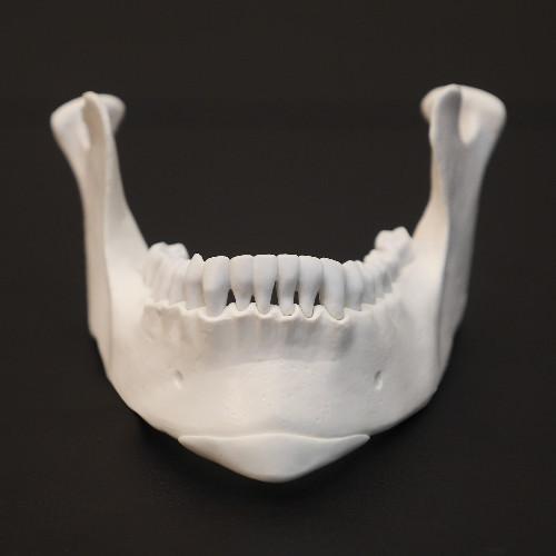 全3D列印墊下巴手術 - 全程3D列印下巴整形手術