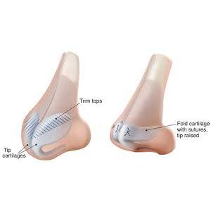 鼻頭縮小手術(蒜頭鼻蓮霧鼻改善)