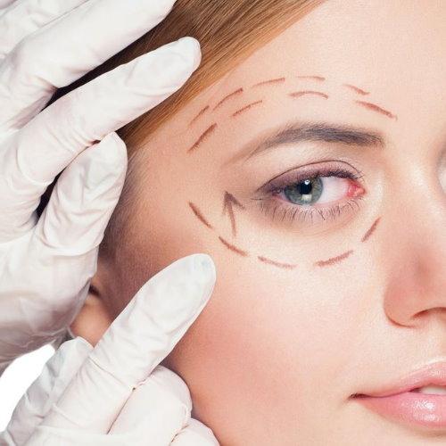 微創提眉手術