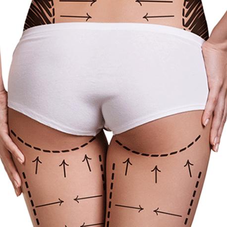 透過整形手術改善屁股大的方式有哪些?