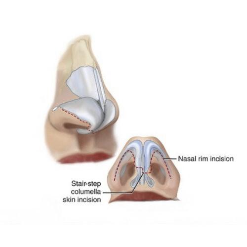 鼻頭塑型手術介紹,改善寬大鼻頭精緻鼻形立現