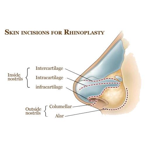鼻頭塑型手術價錢費用行情介紹