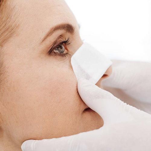 鼻頭塑型手術傷口疤痕及恢復期腫脹過程