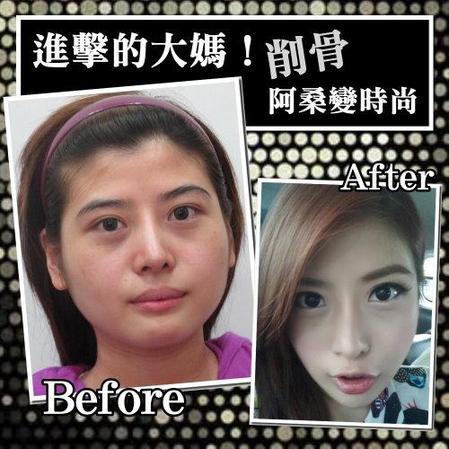 削骨經典案例進擊的大媽驚動香港中國網友