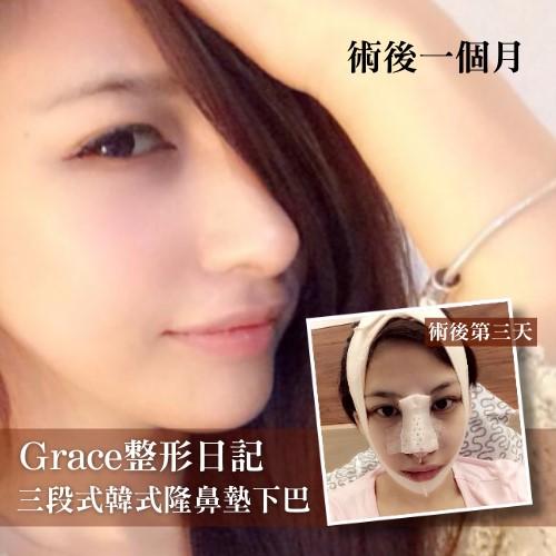 美女Grace韓式三段式隆鼻墊下巴神改變