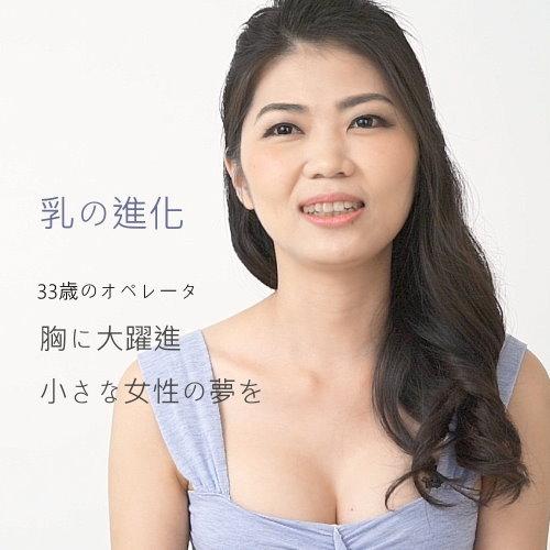 水滴隆乳手術Vivi圓夢計畫隆乳手術心得分享