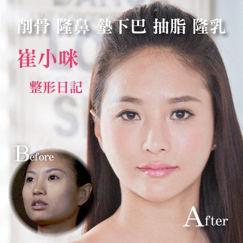香港澳門新加坡馬來西亞台灣墊下巴手術