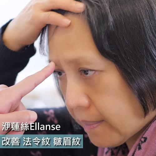 洢蓮絲Ellanse處理法令紋皺眉紋問題
