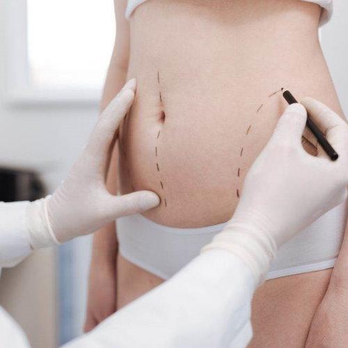 抽脂手術前後比對二代威塑水刀抽脂手術
