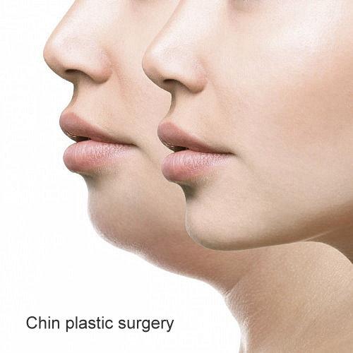 墊下巴手術前後比對3D列印墊下巴整形