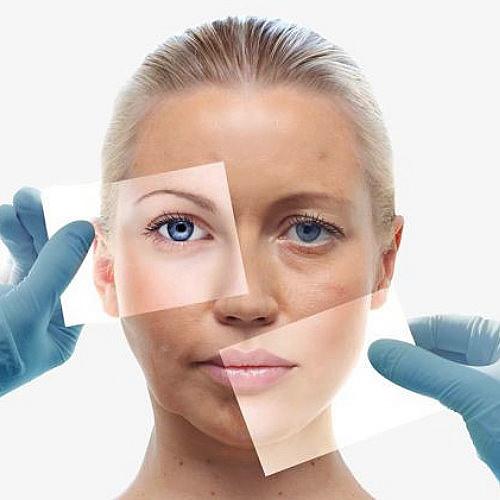 臉部拉皮手術前後比對埋線及手術拉皮拉提