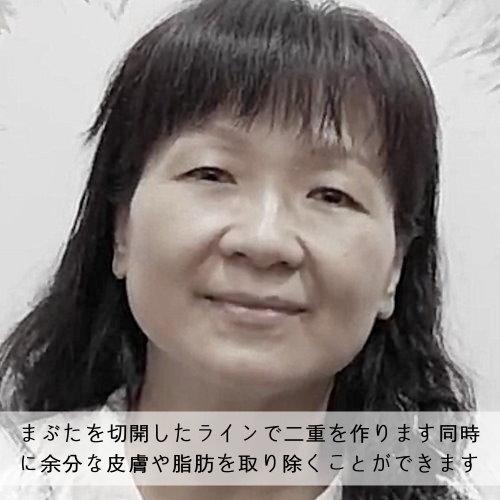 盧阿姨美麗人生眼部皮膚老化鬆弛下垂改善