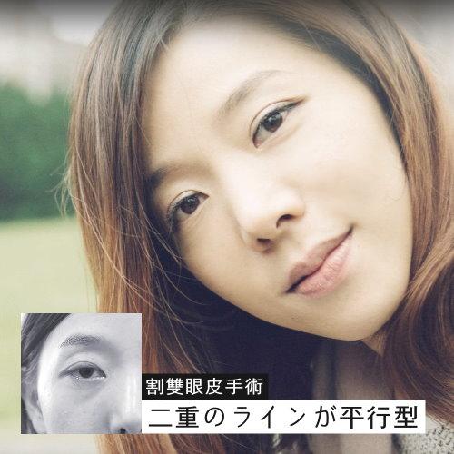 單眼皮女孩的自然型割雙眼皮手術日記心得