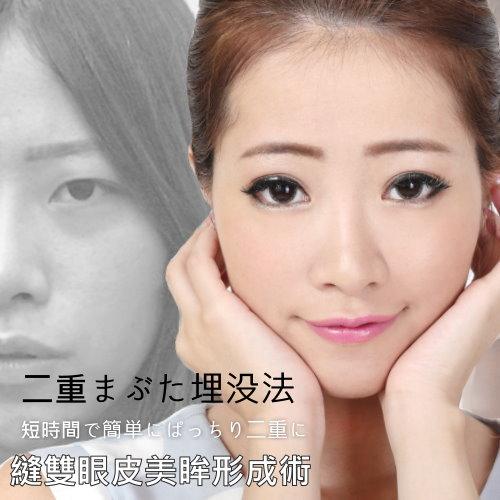 自然型訂書針縫雙眼皮手術Micky美眸形成
