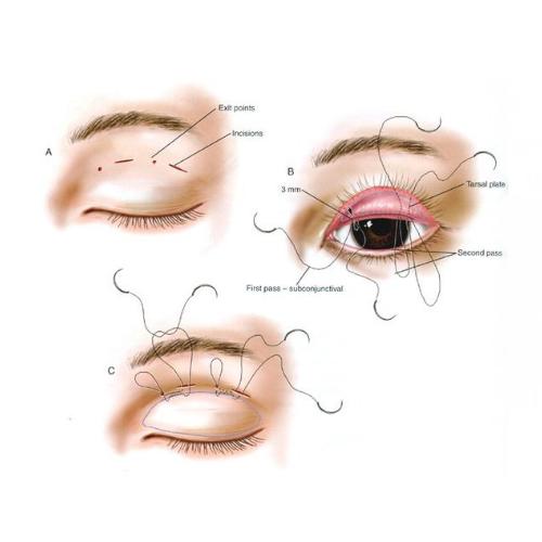 雙眼皮手術前後比對割縫雙眼皮內外開手術