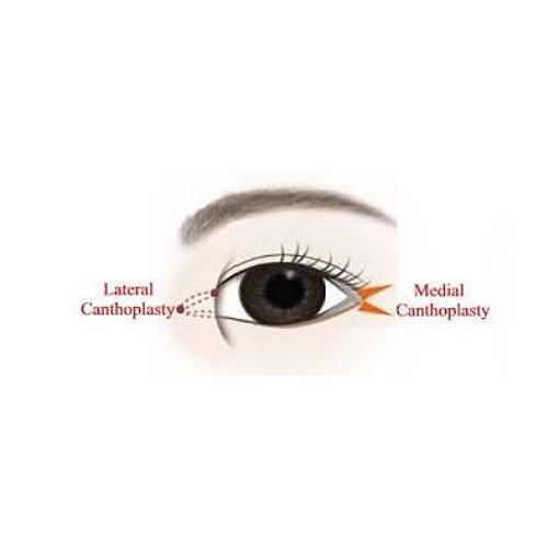 開眼頭眼尾手術前後比對有疤無疤開眼頭眼尾