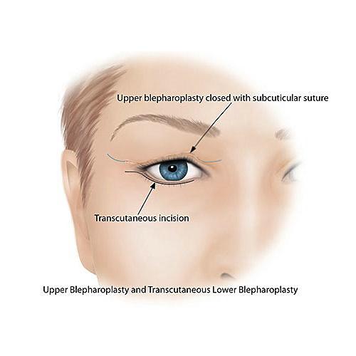 提眼瞼肌無力前後比對雙眼不對稱提眼瞼肌