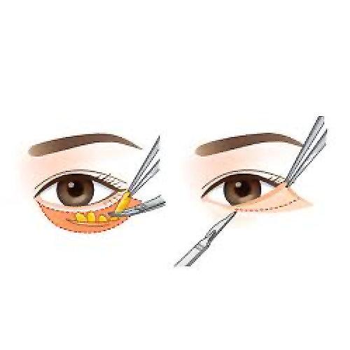 眼袋手術前後比對內外開割抽除眼袋手術