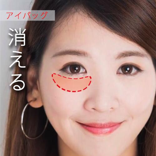 眼袋手術內外開眼袋手術日記心得分享