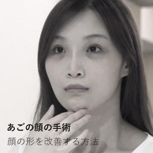 複合式臉部削骨墊法令紋手術改善臉型輪廓