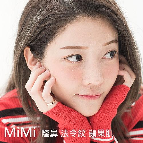 MiMi隆鼻墊法令紋自體脂肪豐額蘋果肌手術