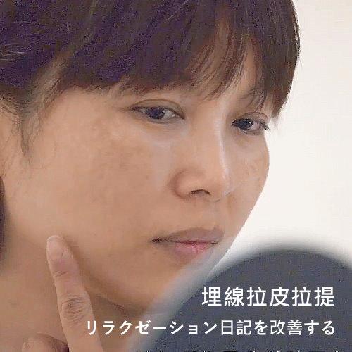 埋線拉提手術Rizana 埋線拉提改善臉部鬆弛