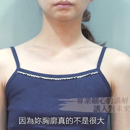 【預告】腋下內視鏡隆乳顛覆平胸改造計畫